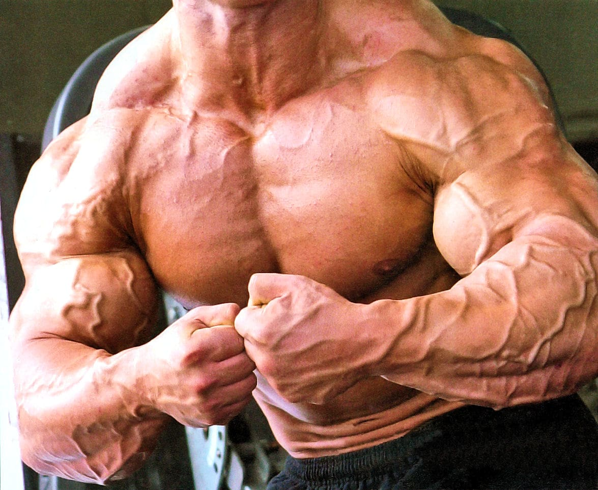 anabolic steroids cause diabetes