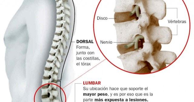 Rutina de ejercicios para dolor de espalda