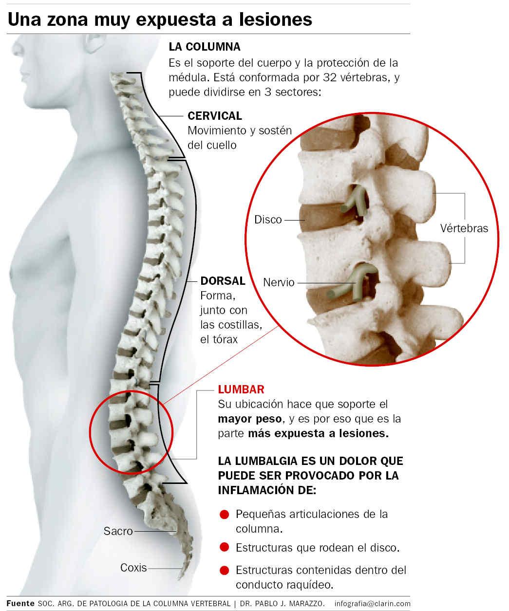 Ejercicios para dolores lumbares