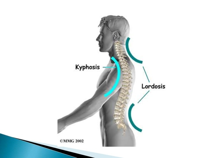 how to fix kyphosis lordosis