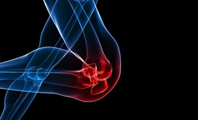 evitar lesiones de rodilla