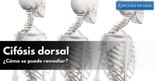 cifosis-dorsal